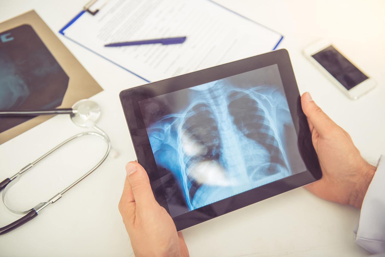 Login Clinics can order X-rays in North Carolina